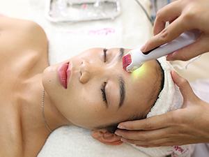 Sử dụng lăn kim điều trị sẹo lâu năm